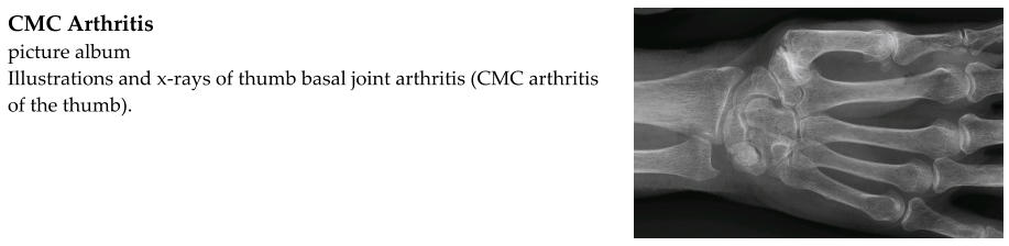 CMC Arthritis  picture album Illustrations and x-rays of thumb basal joint arthritis (CMC arthritis of the thumb).