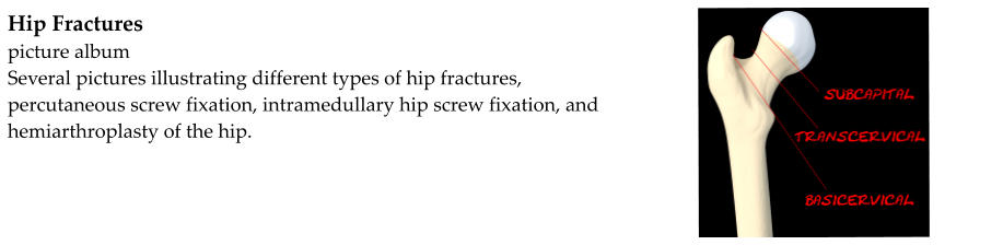 Hip Fractures picture album Several pictures illustrating different types of hip fractures, percutaneous screw fixation, intramedullary hip screw fixation, and hemiarthroplasty of the hip.